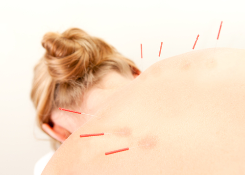 Acupuncture Boulder City Henderson Nevada